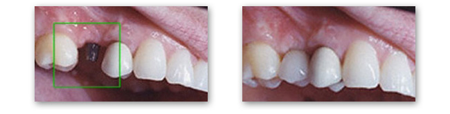 Dental implants in Norman OK give you back your natural looking smile