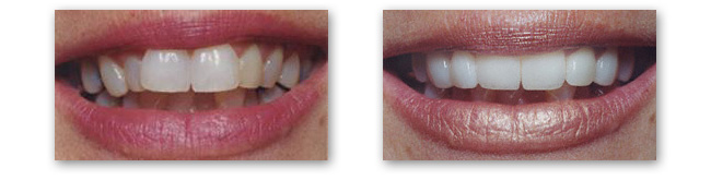Porcelain veneers in Moore OK can give you straighter whiter teeth